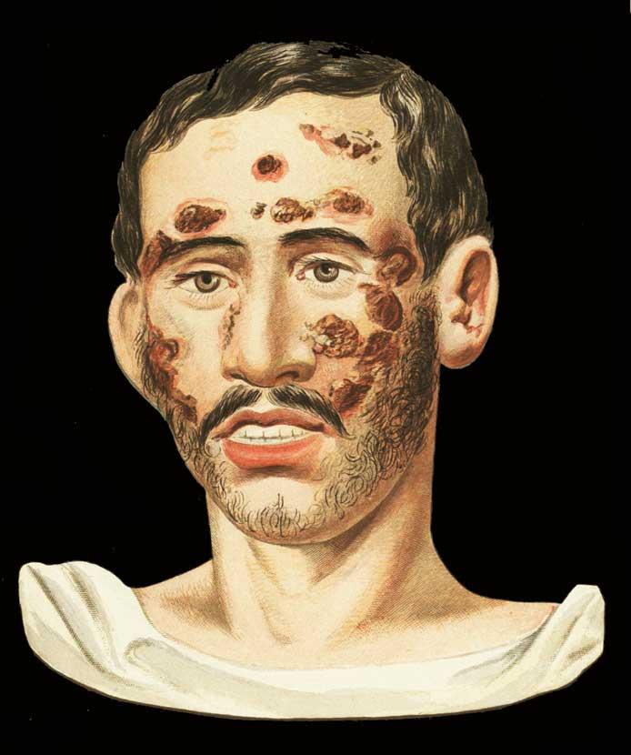 Sifilis_pustulo_ulcerosa